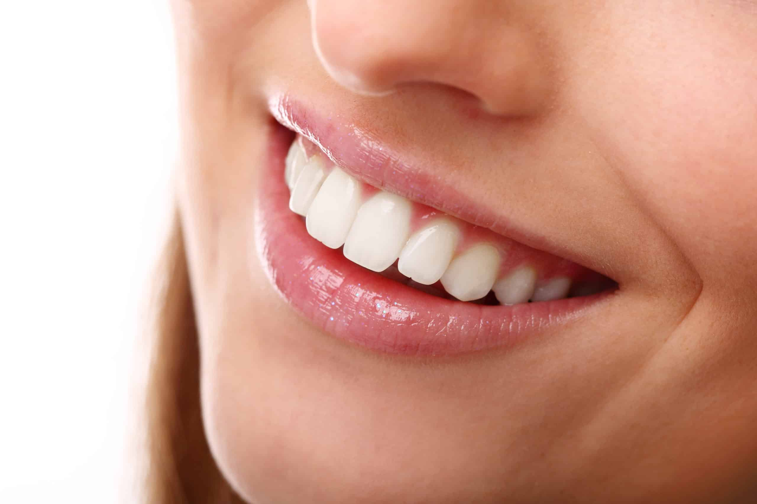 perfect smile with white teeth closeup 1 scaled